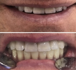 Nyolc implantátum