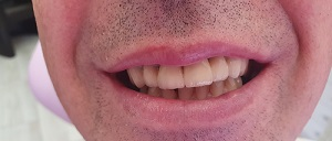 Felső fogak esztétikai korrekciója,fémkerámia póltás után